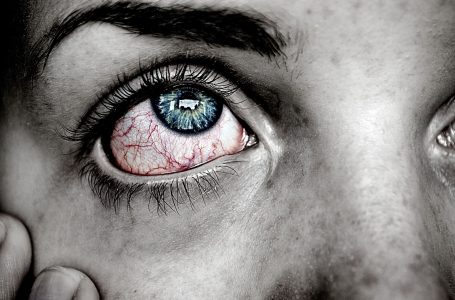 10 Common Questions You May Be Asking About Why Do My Eyes Hurt